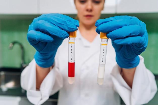 De vrouwelijke medische of wetenschappelijke onderzoeker houdt in reageerbuizen in handen