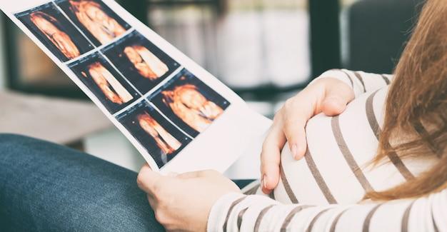 De zwangere vrouw kijkt op de foto van haar kind dat door middel van echografie maakt