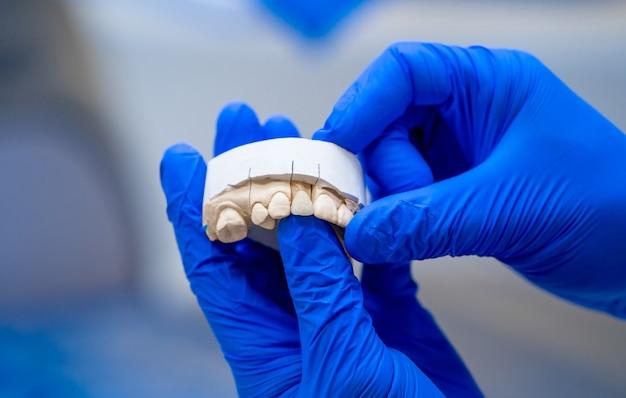 Dental, een gebitsprothese polijst