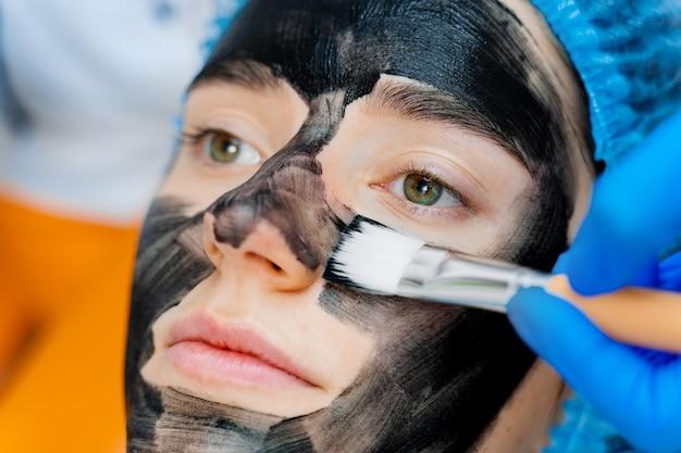 Dermatoloog smeert zwart masker op gezicht voor laserfotoverjonging en koolstofpeeling. dermatologie en cosmetologie. met behulp van chirurgische laser.