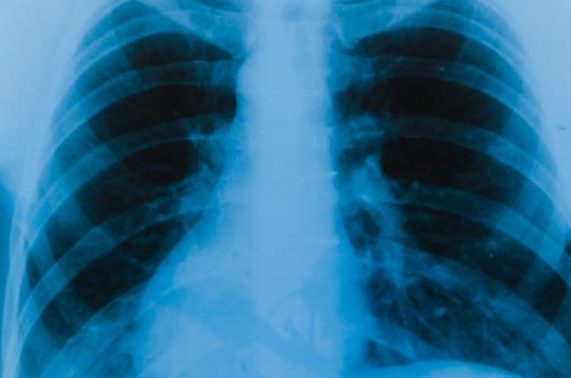 Detail van een röntgenfoto van de longen