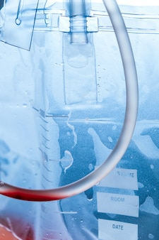 Detailbeeld van urine-zak die naast het bed van de patiënt hangt met vloeistof en bloed