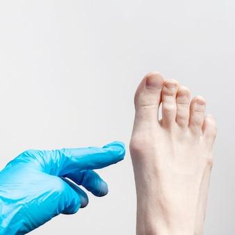 Dien een blauwe medische handschoen in, onderzoekt een orthopedisch chirurg de voet van een vrouw.