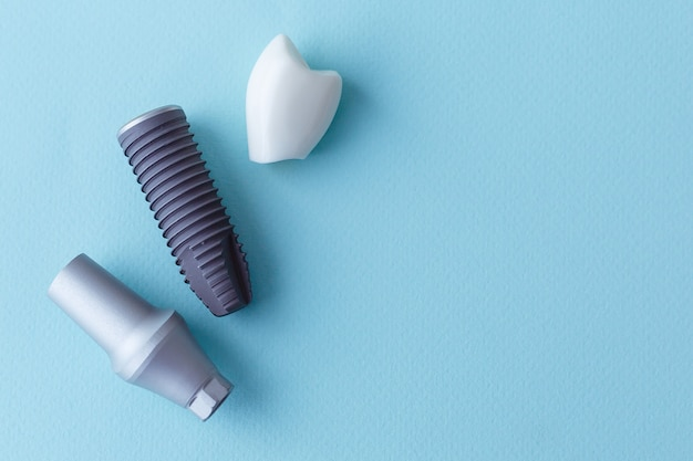 Dit model laat zien dat de tanden zijn afgedekt en de roestvrijstalen pin in het tandvlees. blauwe achtergrond