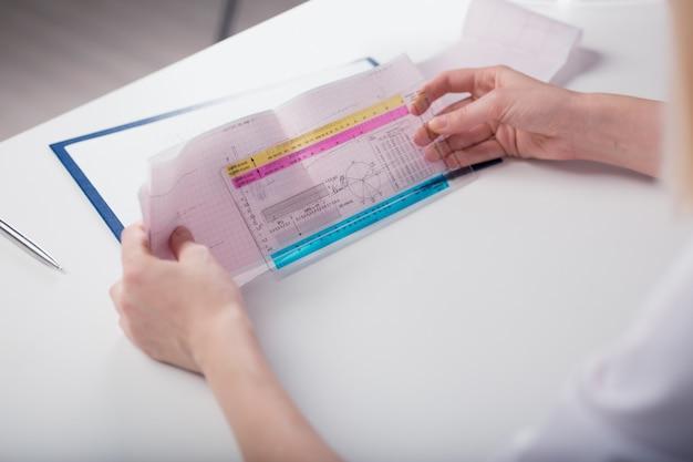 Dokter houdt in handen van een cardiogram, houdt haar transcriptie vast. de beelddiepte van het veld.
