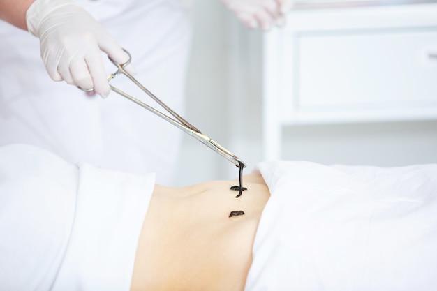 Dokter in de kliniek zet medicinale bloedzuigers op de buik van een vrouw, close-up