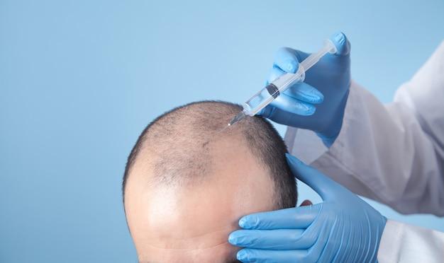 Dokter maakt injectie in het hoofd van de man voor de haargroei.