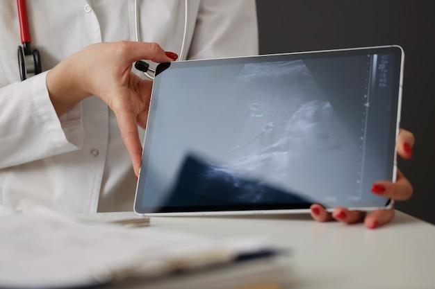 Dokter toont abdominale echografie op digitale tablet in kliniek close-up