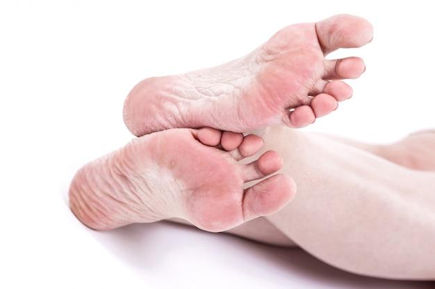 Droge uitgedroogde huid op de hielen van vrouwelijke voeten met eelt