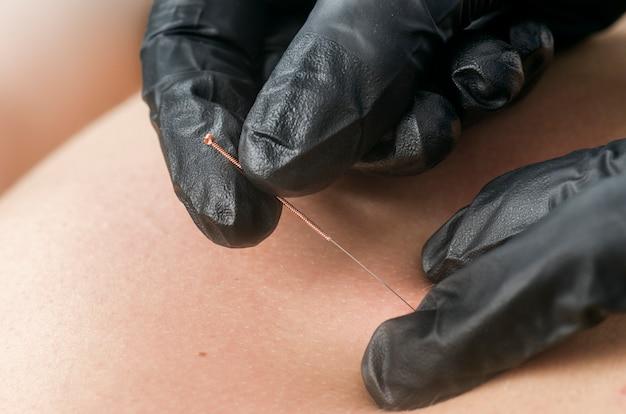 Droog de naald. fysiotherapeut die droge needling met zwarte handschoenen doen.