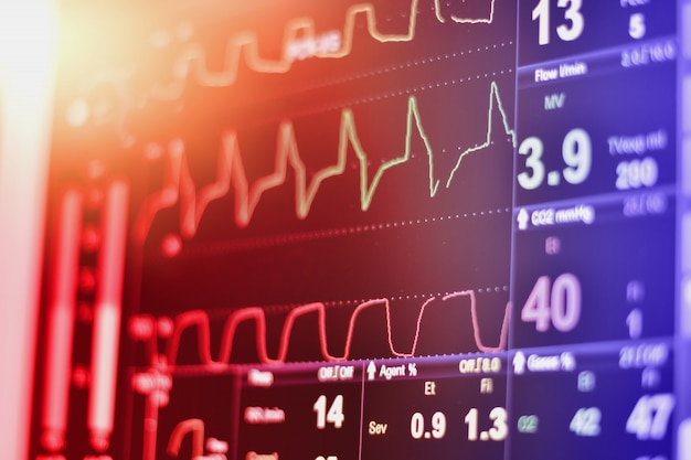 Ecg-monitor in intra-aorta ballonpompmachine in icu op onscherpe achtergrond, hersengolven in elektro-encefalogram, hartslaggolf