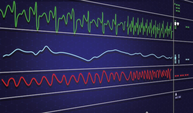 Ecg-monitor in intra-aortaballonpompmachine in icu op onscherpe achtergrond, hersengolven in elektro-encefalogram, hartslaggolf