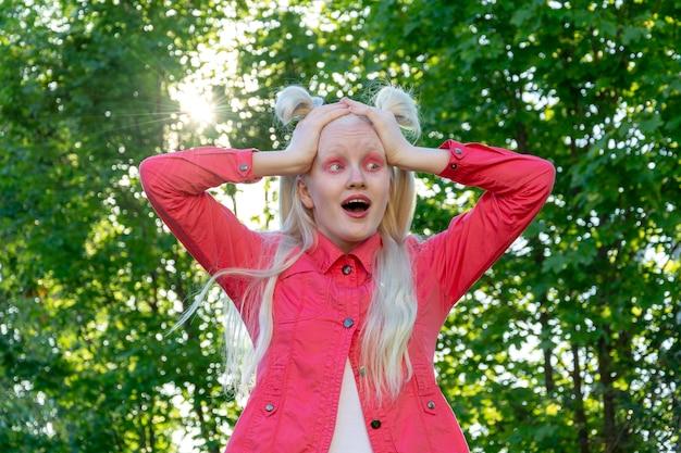 Een albino jonge vrouw in een rode blouse tegen een achtergrond van groene bladeren en zonlicht. ze houdt haar hoofd in haar handen en kijkt verbaasd naar de camera