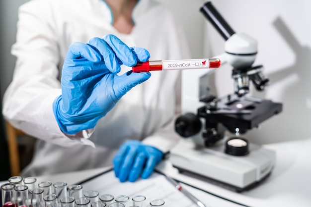 Een arts heeft in zijn hand een reageerbuis met een positieve bloedtest voor het nieuwe concept - de dreiging van het nieuwe chinese virus 2019-ncov coronavirus uit china.