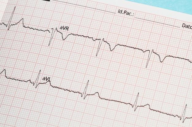 Een deel van een elektrocardiogram afgedrukt op papier