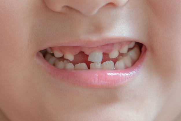 Een gelukkige kleine jongen glimlacht en toont zijn gebroken tanden.