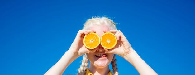 Een jonge albinovrouw houdt sinaasappelschijfjes voor haar ogen tegen een blauwe lucht