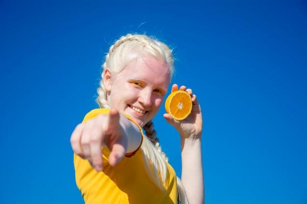 Een jonge albinovrouw wijst met haar vinger naar de camera en houdt in haar andere hand een schijfje sinaasappel tegen de blauwe lucht