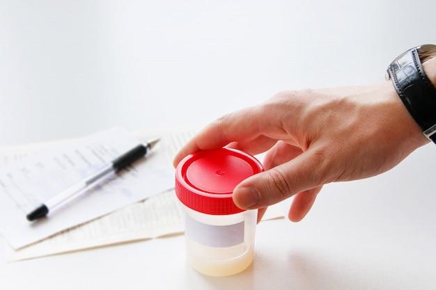 Een man zet een medische container met sperma-analyse.