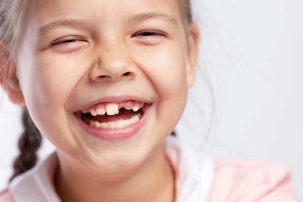 Een meisje van schoolgaande leeftijd zonder voortand lacht. verandering van tanden.