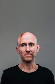 Een mishandelde man in een zwart t-shirt die eruitziet als een drugsverslaafde en een dronkaard staat op een grijze achtergrond.
