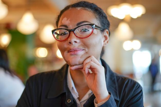 Een mooi jong meisje van afrikaanse etniciteit met vitiligo zittend in een restaurant