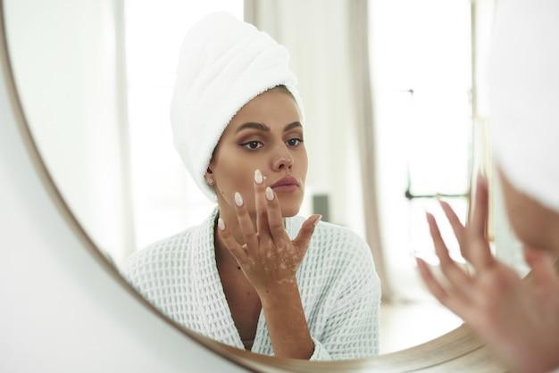 Een mooie jonge vrouw met vitiligo op haar handen brengt een crème aan voor een probleemhuid op haar gezicht