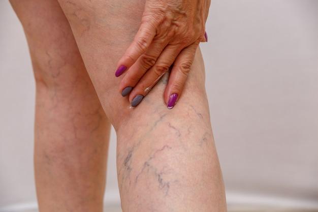Een oudere vrouw smeert een crème of zalf op haar been op een licht geïsoleerde achtergrond.