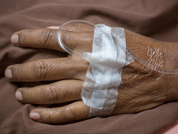 Een patiënt met een intraveneuze lijn ingebracht in een ader in de hand.