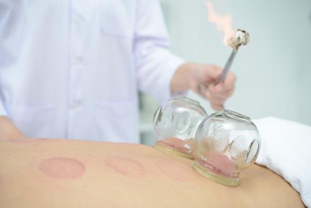 Een persoon die cupping-behandeling op terug in kuuroord, traditionele chinese geneeskundebehandeling ontvangt.