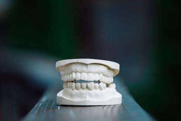 Een plastic model van de kaak voor protheses op tafel