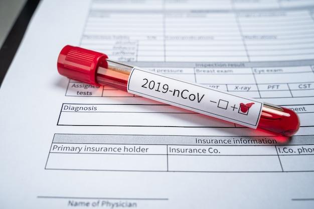 Een reageerbuis met een positieve test voor een nieuw coronavirus uit china ligt op het formulier voor het opnemen van de diagnose.
