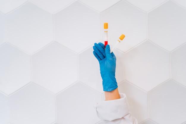 Een rubberen hand houdt twee buis met het medicijn vast