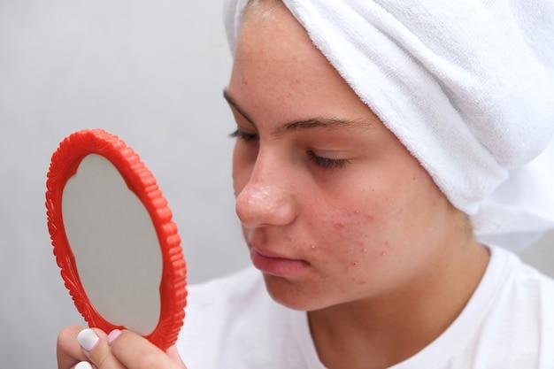 Een triest tienermeisje kijkt naar de puistjes op haar gezicht in de spiegel. problematische huid bij adolescenten. acne.