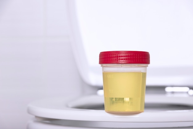 Een urinemonster in een medische container zit op de rand van een wit huishoudtoilet