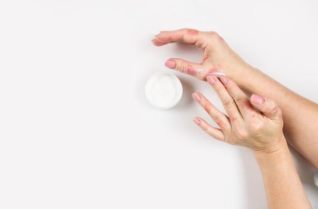 Een vrouw brengt crème aan op haar handen om dermatitis te behandelen