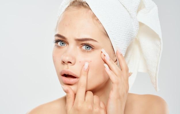 Een vrouw met een handdoek op haar hoofd knijpt acne op haar gezicht probleemhuid cosmetologie dermatologie.