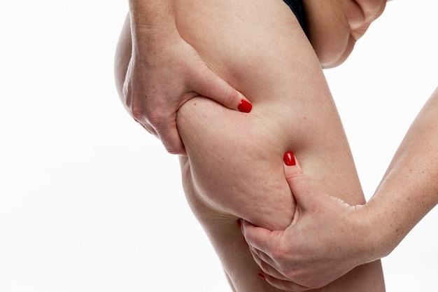 Een vrouw raakt haar dikke cellulitis dijen met haar handen aan. obesitas en overgewicht.