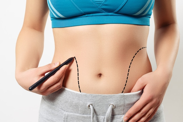 Een vrouw toont een stippellijn op de liposuctiezone van haar lichaam