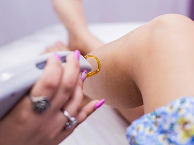 Een vrouwelijke arts doet laserepilatie op een vrouwelijke benenhuid.