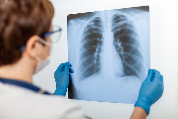 Een vrouwelijke arts onderzoekt een röntgenfoto van de long van een patiënt die is geïnfecteerd met covid-19 coronavirus, longontsteking. x-stralen van licht. fluorografie. controle van de longen in het ziekenhuis. echte röntgenfoto van menselijke longen