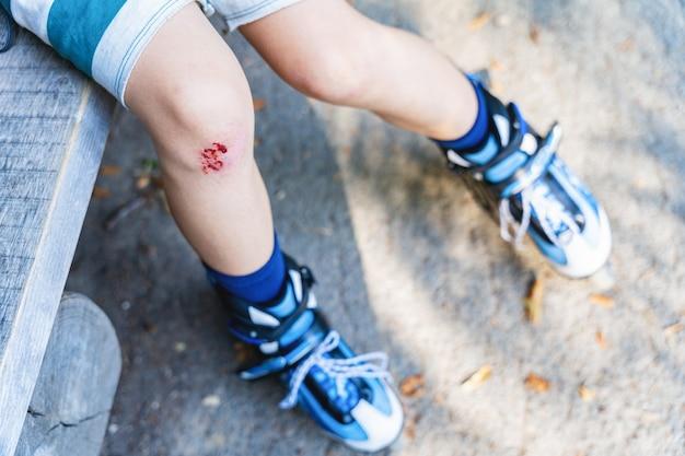 Een wond aan de knie van een kind na een val tijdens het skaten