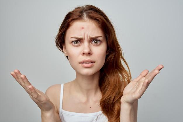 Emotionele vrouw puistjes op voorhoofd dermatologie ontevredenheid huidproblemen