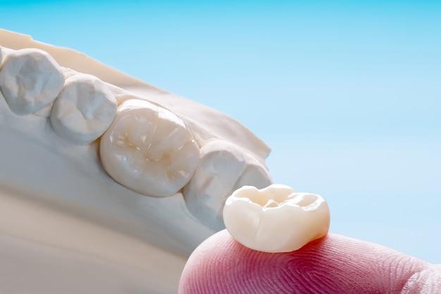Enkele tanden kroon- en bruguitrustingsmodel express fix restauratie