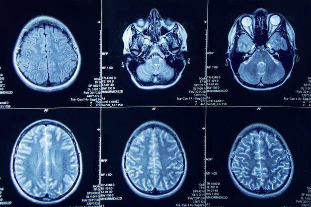 Foto van magnetische resonantie beeldvorming van menselijke hersenen