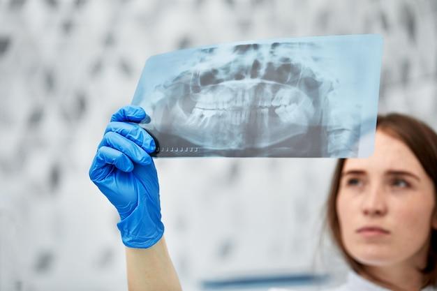 Foto van vrouwelijke arts of tandarts die röntgenfoto's bekijkt.
