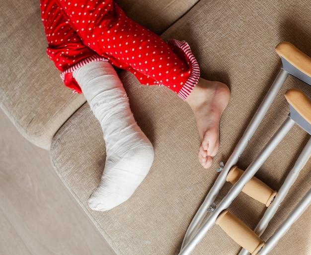 Fractuur van de enkelbotten bij een tienermeisjespatiënt met gips en krukken. chirurgische revalidatie en orthopedisch herstel, liggend op de bank, thuisblijven