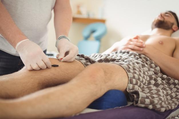 Fysiotherapeut die droge needling op de knie van een patiënt uitvoeren