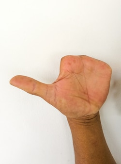 Geamputeerde vinger van mensen na een ongeval. abnormale hand.