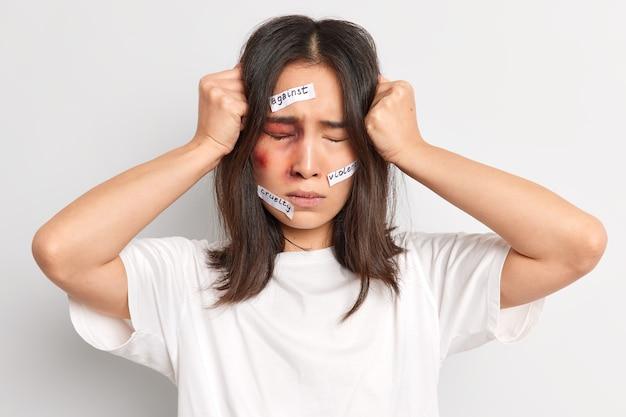 Gefrustreerde brunette jonge vrouw lijdt aan ernstige hoofdpijn wordt slachtoffer van huiselijk geweld wordt misbruikt en gekwetst door wrede echtgenoot heeft blauwe plek onder de ogen.